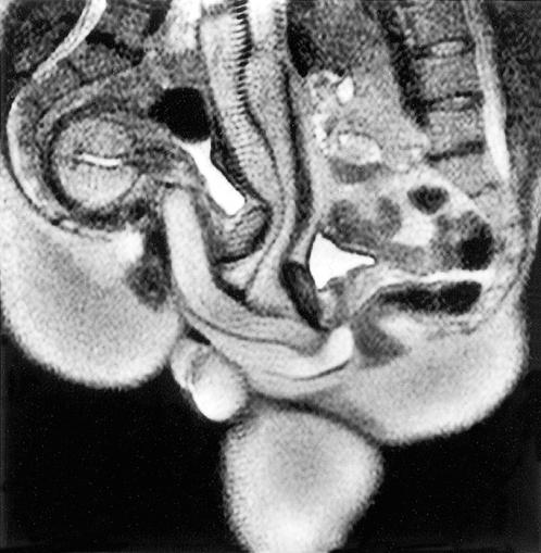 Секс в разрезе томограф